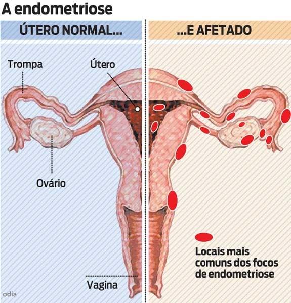 endometriose-sintomas